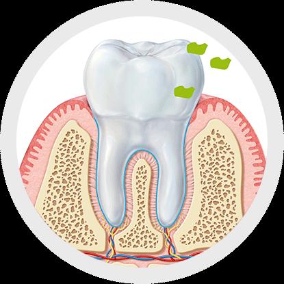 ¿Qué relación tiene la halitosis con la higiene interdental?